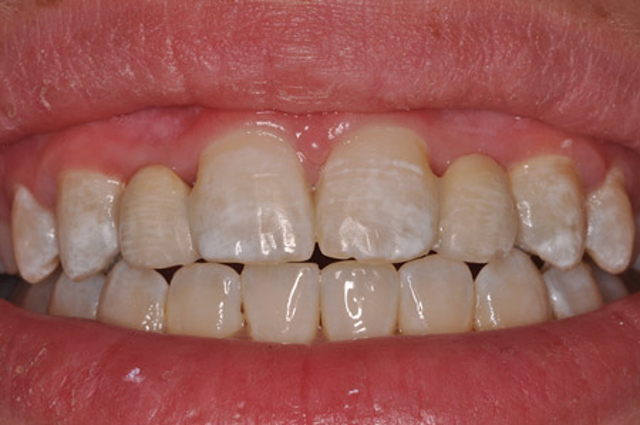 Patients Hate Flippers And So Should You Dental Economics