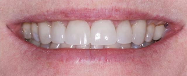 Crowns versus veneers | Dental Economics