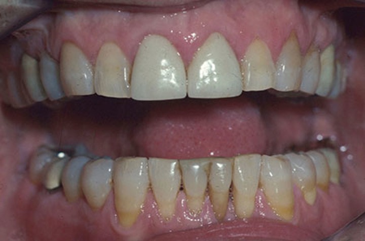 Zirconia and lithium disilicate restorations versus PFM | Dental
