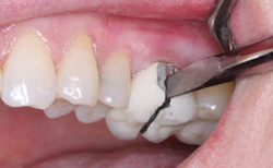 Is Socket Grafting Standard Of Care Dental Economics