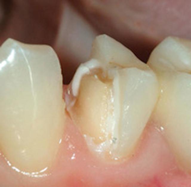 Is socket grafting standard of care? | Dental Economics