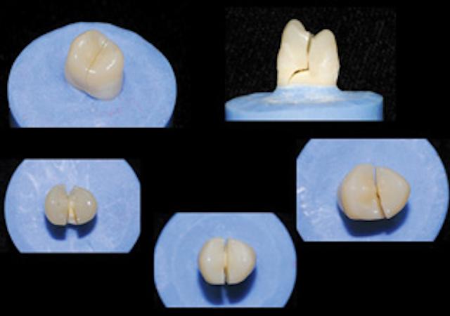 Zirconia vs  lithium disilicate | Dental Economics