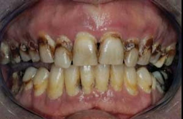 Ask Dr  Christensen | Dental Economics