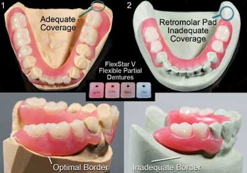 Flexible partial dentures are here to stay | Dental Economics
