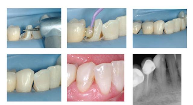 Pulp cap, endodontics, or extract? | Dental Economics
