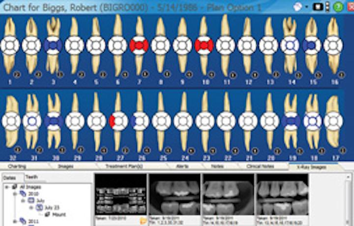 Ramey Charting Screen