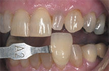 photo relating to Tooth Shade Chart Printable titled Colour Matching for Todays Dentistry Dental Economics