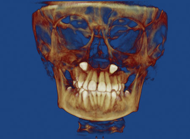 Dentistry, the law, and CBCT | Dental Economics