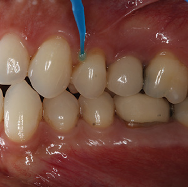 A universal approach to manage dentinal hypersensitivity and postoperative  sensitivity in a restorative dental practice | Dental Economics