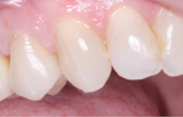 What is the best type of material for posterior crowns? | Dental