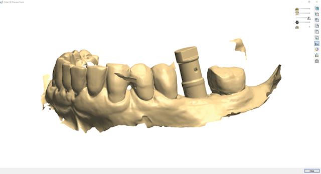 The art of design: Implants and CAD/CAM   Dental Economics