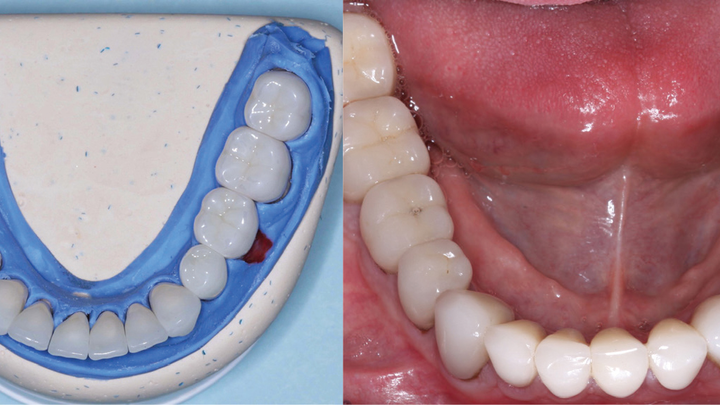 Figures 1 and 2: The restorations on the molars are Class 5 zirconia colored in the presintered stage, nonglazed or superficially stained. They are polished only. The restorations cannot be differentiated from the lithium disilicate restorations on the remainder of the teeth and implants. Note the lack of simulated caries on the occlusal surfaces, which is discouraged. Natural teeth without caries do not have occlusal color. Technicians: Jed and John Archibald; Archibald Associates; Orem, Utah. Clinician: Gordon Christensen, DDS, prosthodontist.
