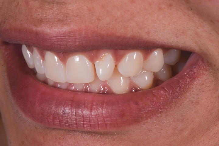 Figure 1: Lateral smile view