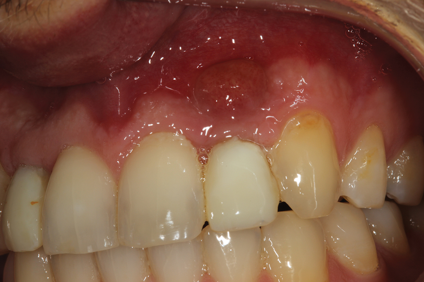 Bone Grafting After Tooth Removal Why When And What To Use Dental Economics