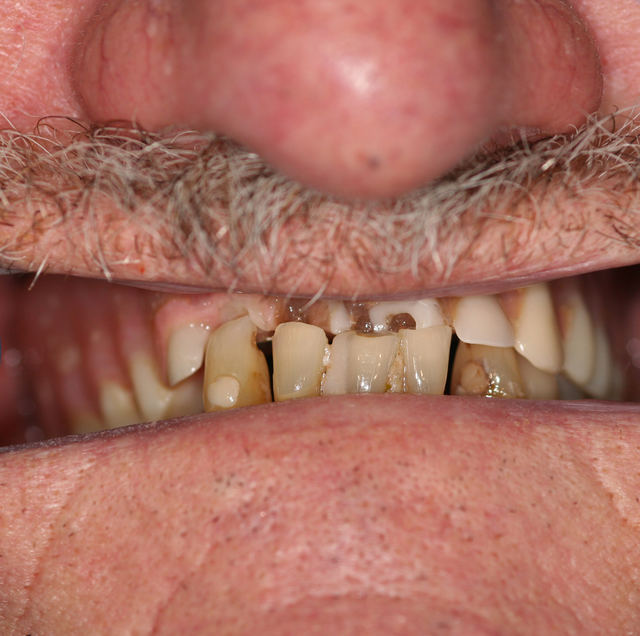 Creating rising stars with 3-D printed dentures | Dental