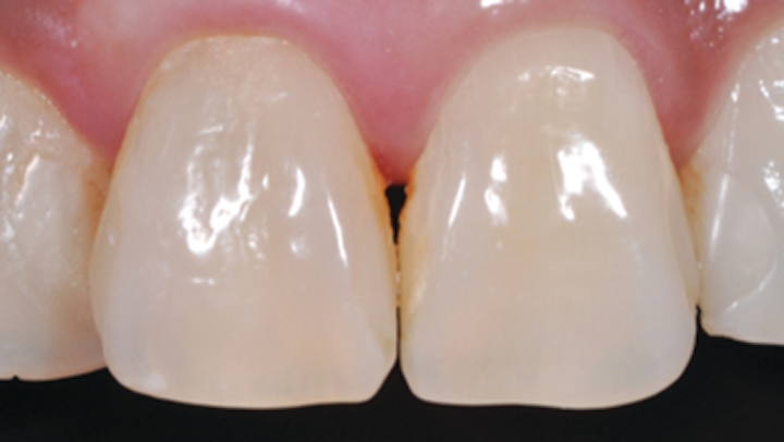 In Office Tooth Whitening The Frontline Tactic For Many