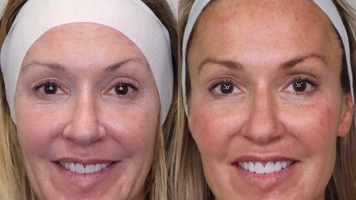 Figure 1: Les photos avant et après, y compris l'esthétique dentaire et faciale, sont de puissants moteurs pour attirer de nouveaux patients.